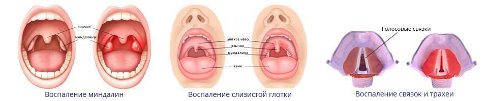 Причины длительной боли в горле, необходимые обследования и способы лечения