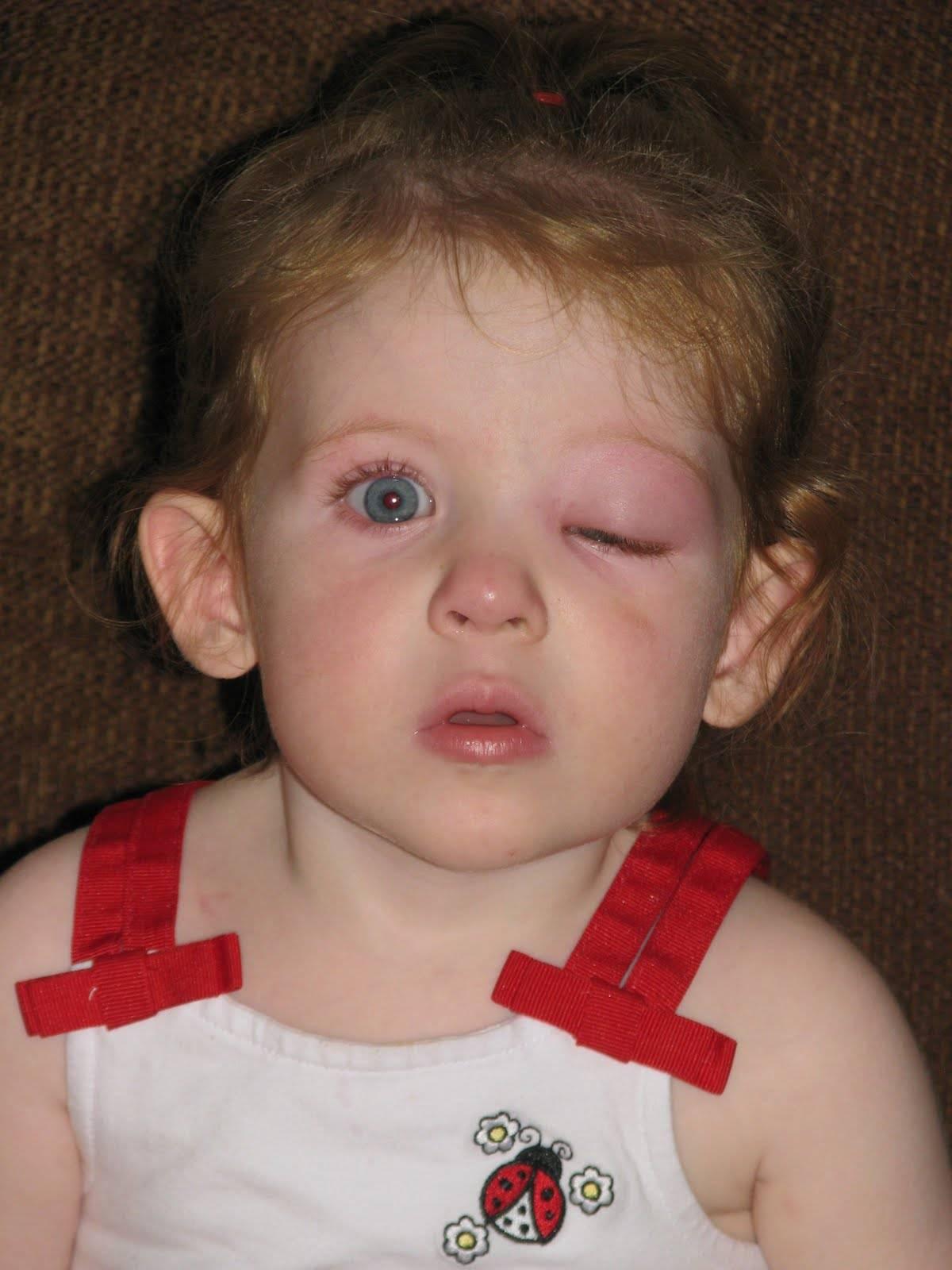 Опух глаз верхнее веко у ребенка причины