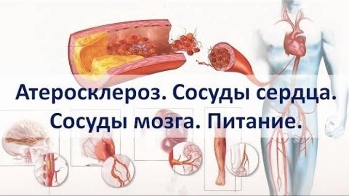 Внимание! атеросклероз сосудов шеи: симптомы и признаки, лечение сосудов