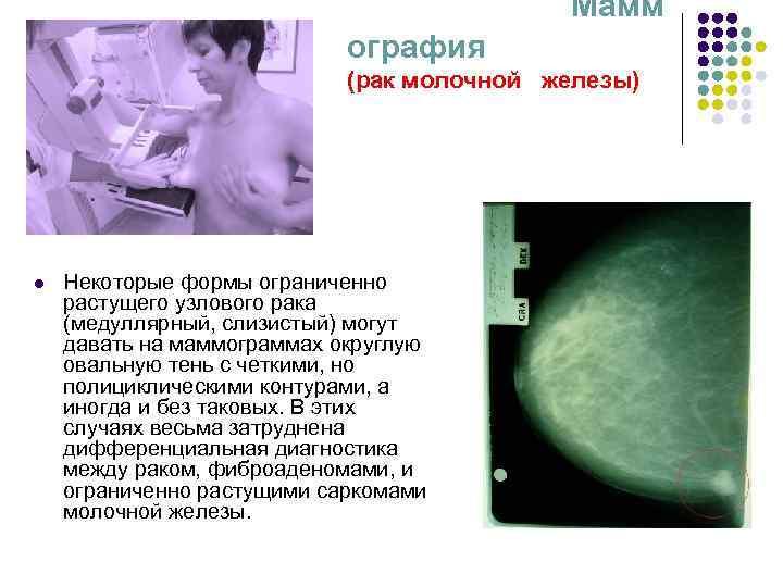 Трижды негативный рак молочной железы 2 стадия