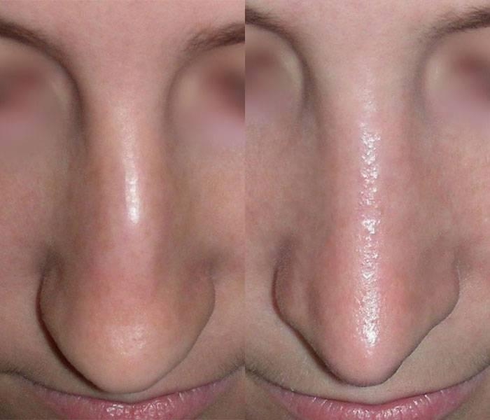 кривой нос как исправить без операции