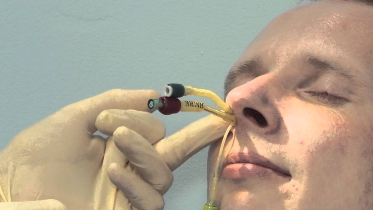 Ямик – процедура при гайморите, которая быстро избавит от недуга