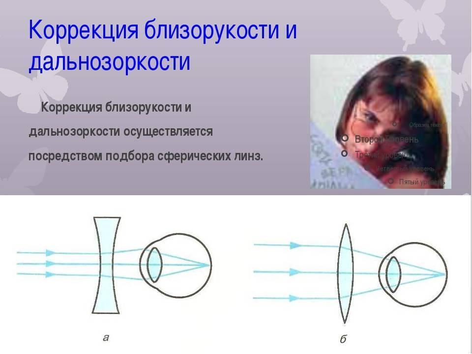 операция по исправлению близорукости