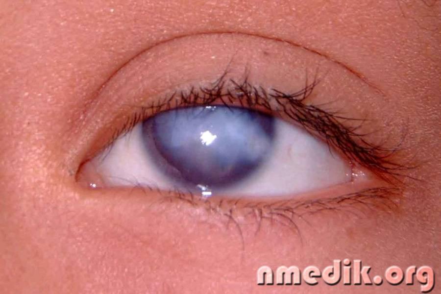 Пленка на глазах!:  вопросы по офтальмологии