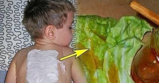 Водочный компресс от кашля ребенку