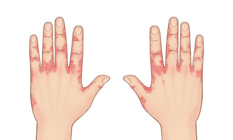 контактный дерматит симптомы и лечение