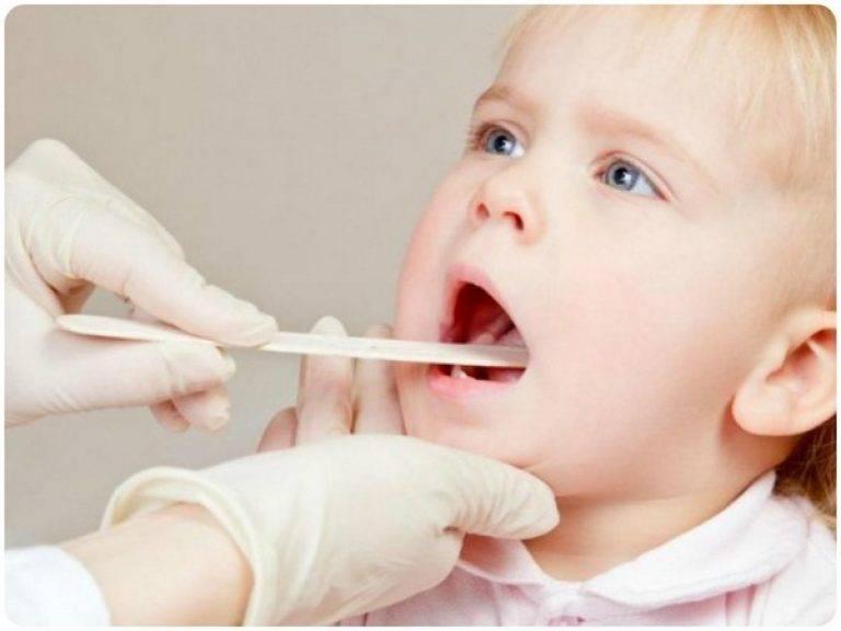Как лечить лакунарную ангину у детей?