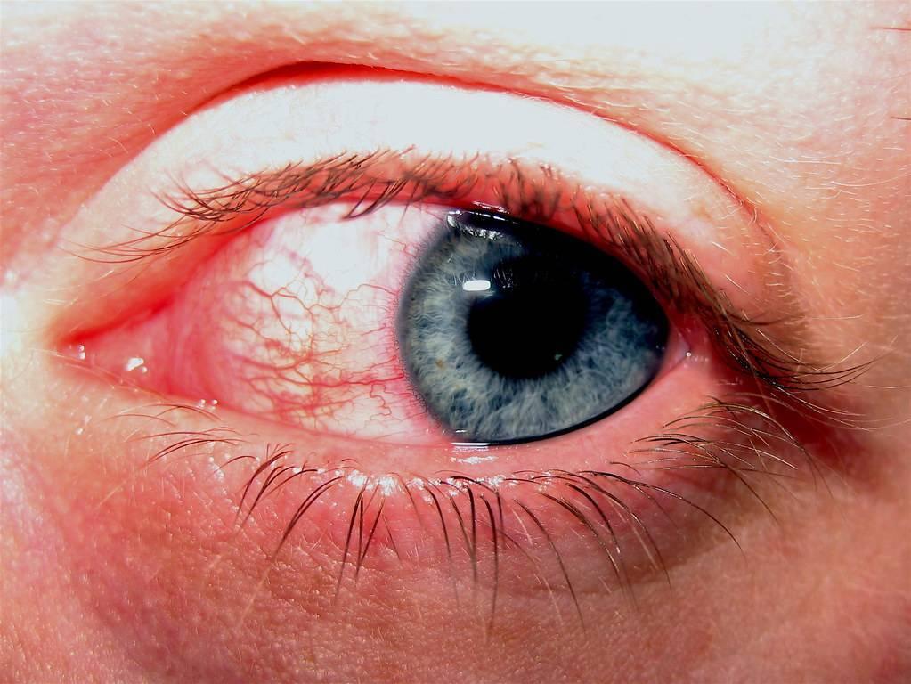 Аллергический конъюнктивит: симптомы и лечение