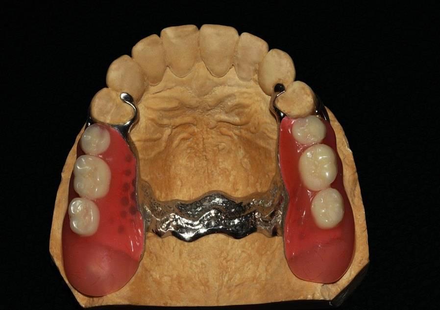 односторонний бюгельный протез на верхнюю челюсть