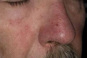 средство от грибка в носу