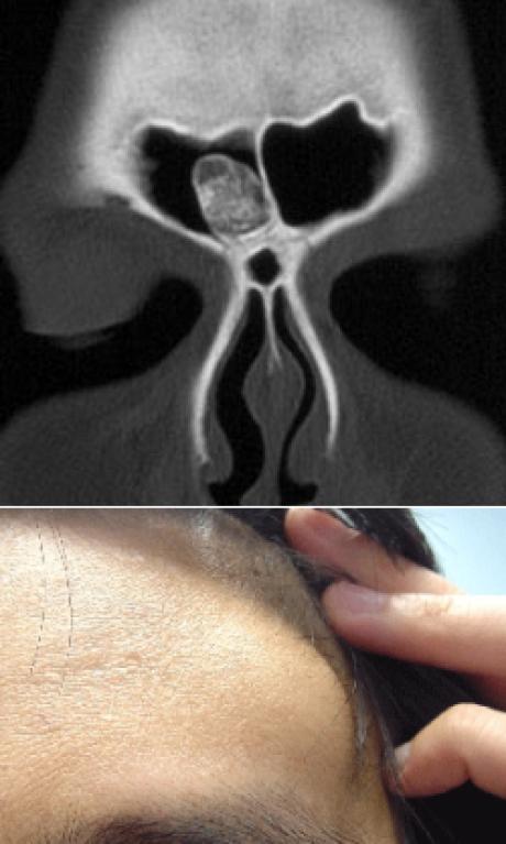 Киста гайморовой пазухи: как развивается, типы, симптомы и диагностика, тактика лечения