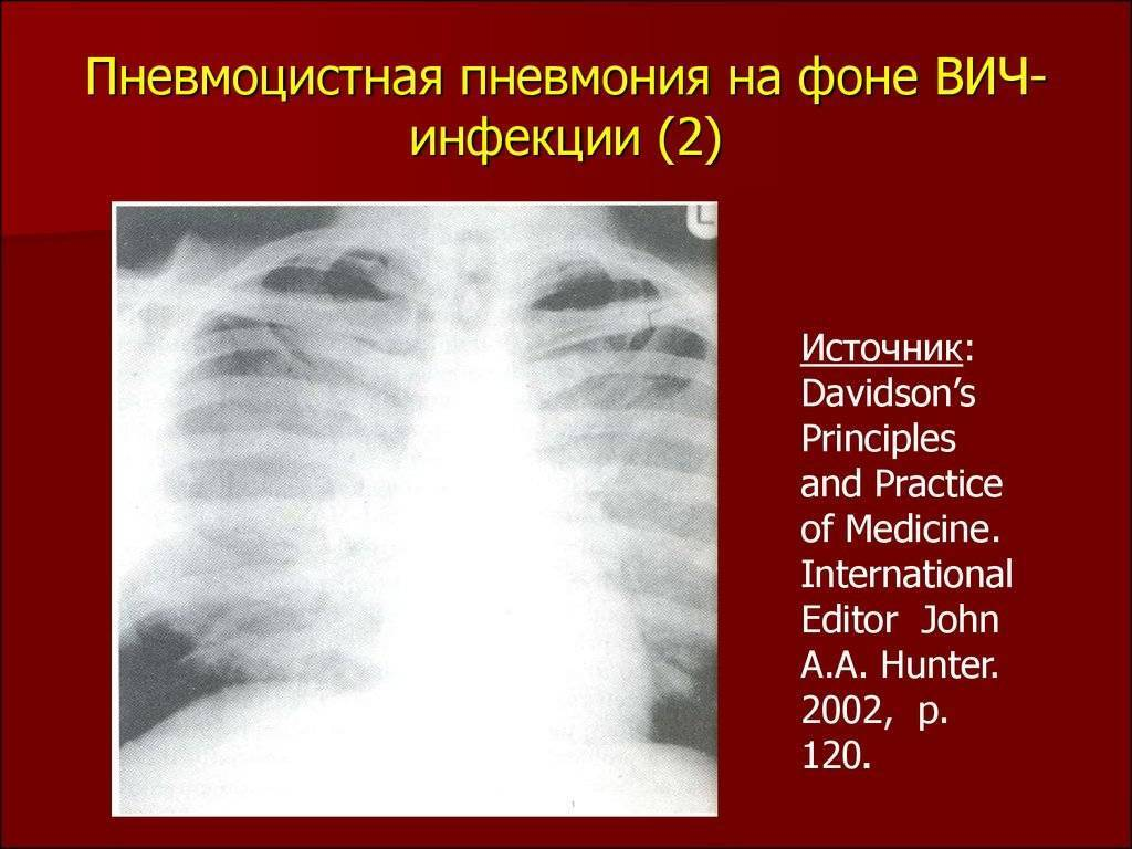 Симптомы и характер течения пневмоцистной пневмонии, чем опасно заболевание, правила эффективного лечения