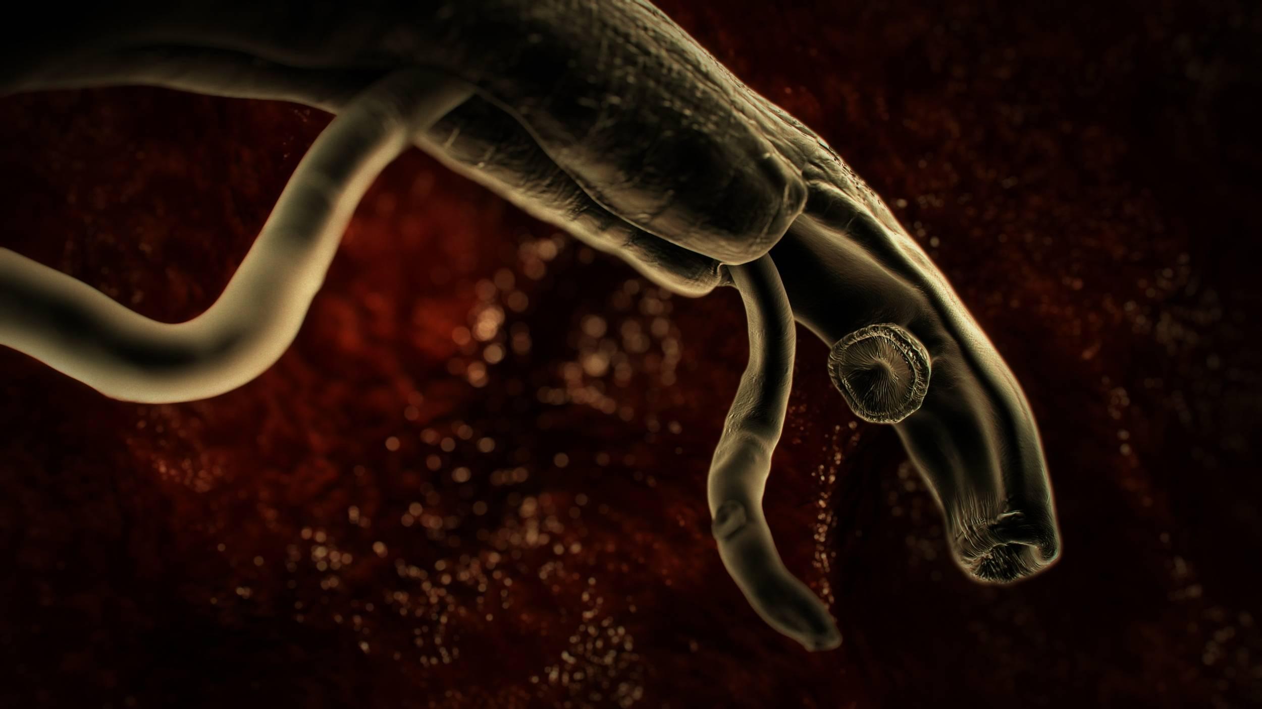 По каким симптомам можно заметить паразитов в кишечнике