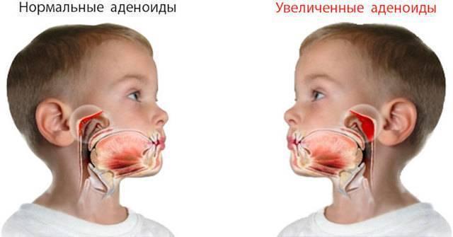 Почему у детей развиваются аденоиды?