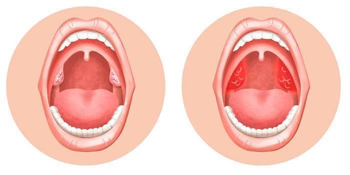 инфекция в горле симптомы