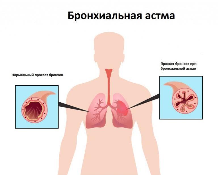 Чем лечить щекотание в горле, вызывающее кашель