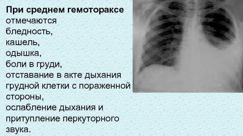 боль в груди при кашле у ребенка