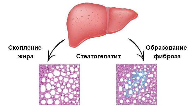 как лечит стеатогепатоз