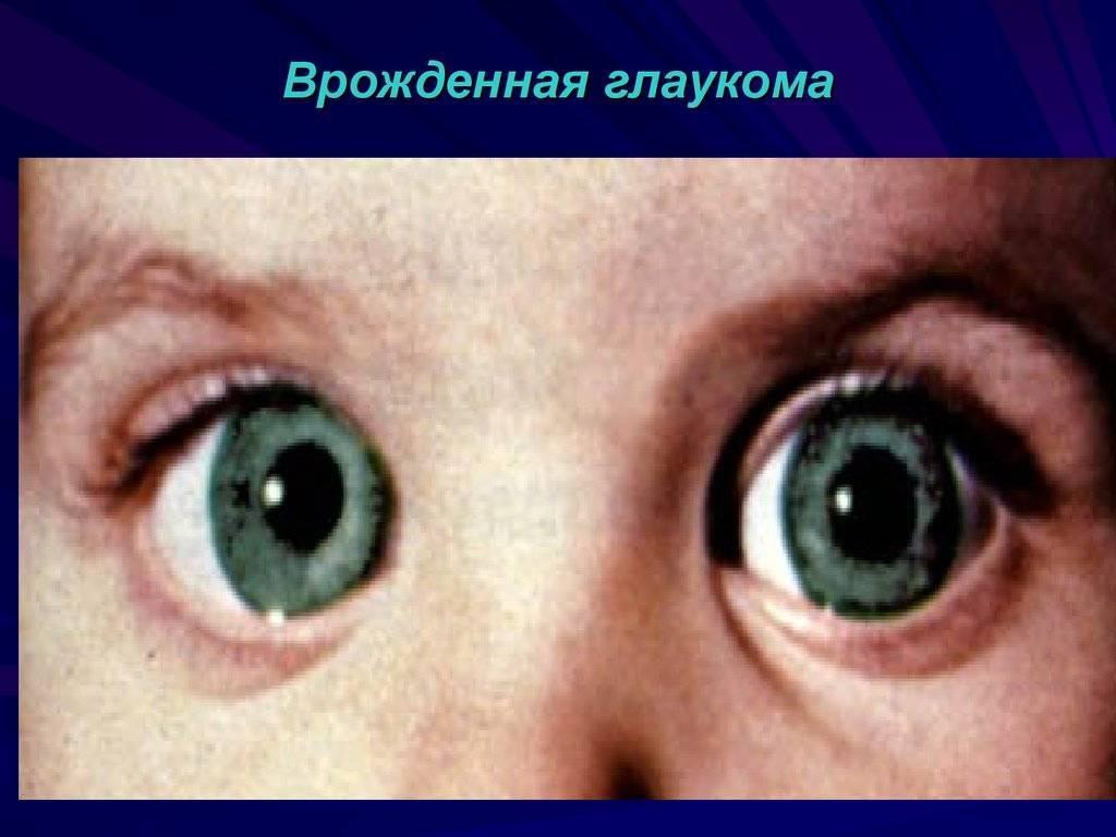 Глаукома у детей: первые признаки, симптомы, лечение