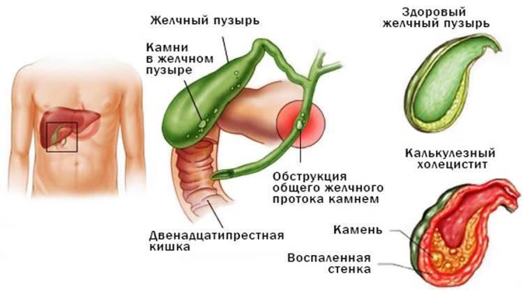 Холецистит. симптомы, причины и лечение у женщин. препараты, народные средства