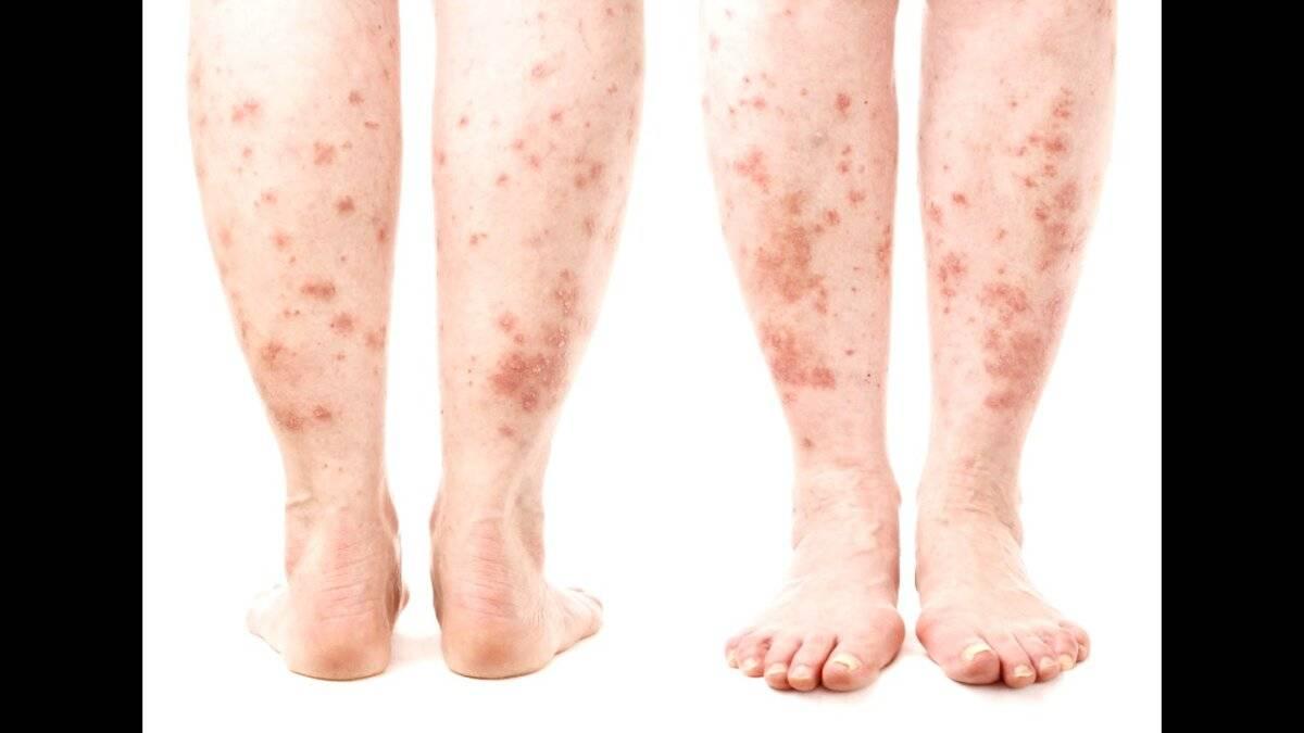как заражаются дерматитом