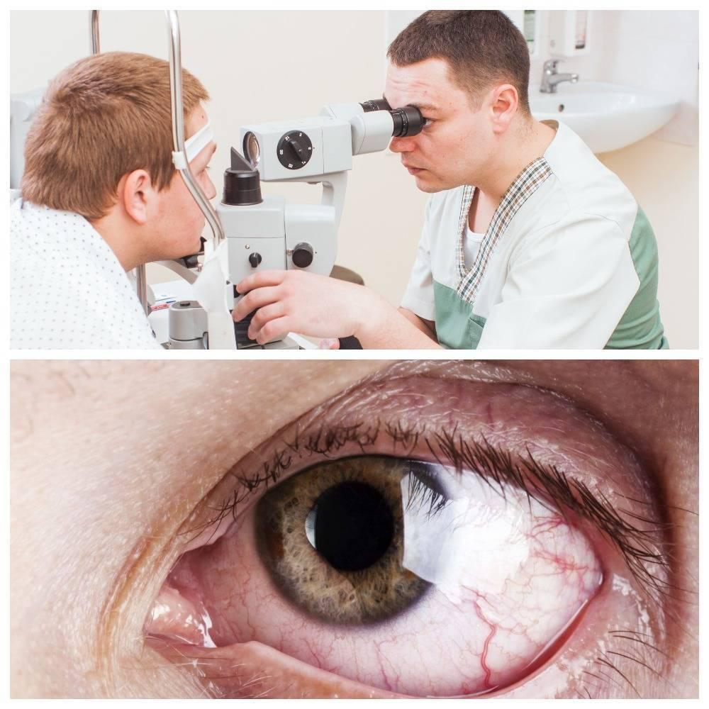 Лечение глаукомы глаза
