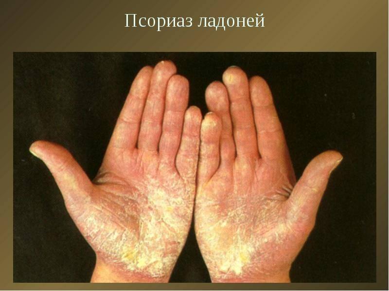 Псориаз начальной стадии на руках – фото и лечение