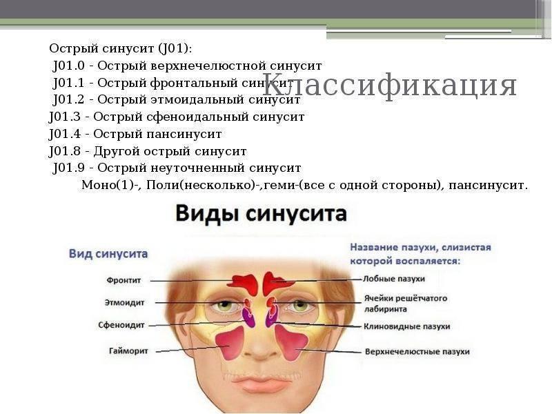 Острый гайморит, симптомы и лечение острого хронического гайморита с откачиванием гноя у взрослых