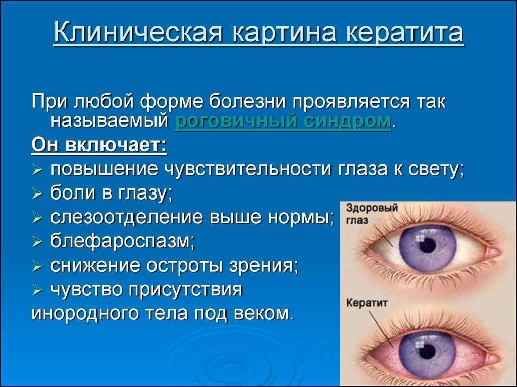глазная болезнь кератит