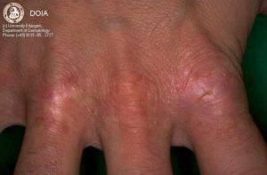 Ретиноевый дерматит — лечение, симптомы, причины