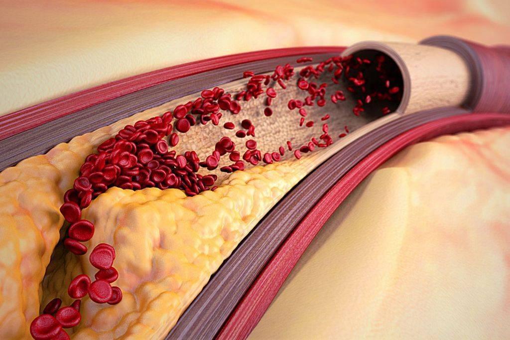Стенозирующий и нестенозирующий атеросклероз сосудов и артерий