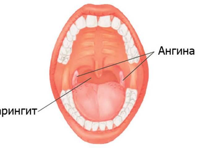 катаральная ангина у взрослых