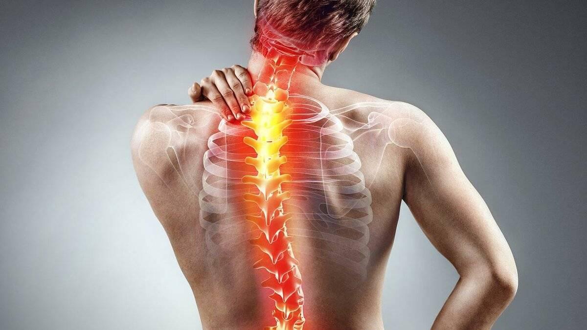 невралгия спины лечение