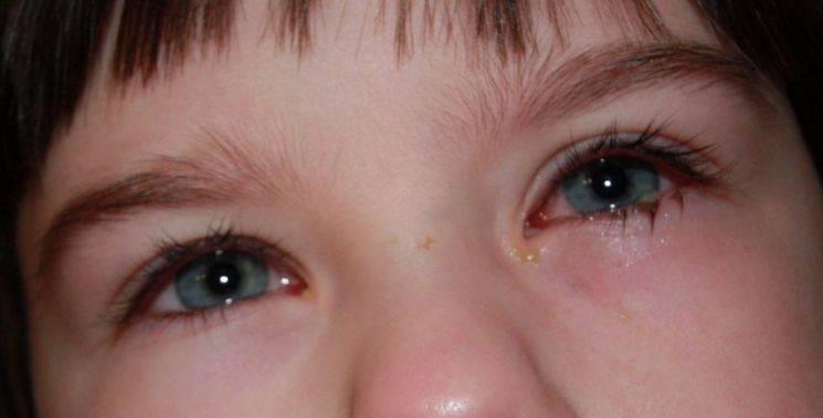 выделения из глаза у взрослого белого цвета