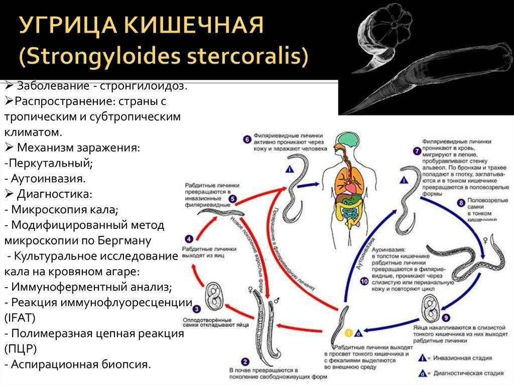 Трихостронгилоидоз
