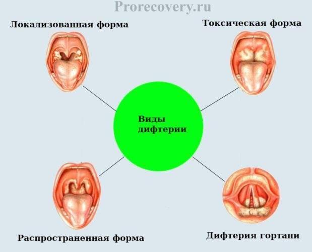 Инкубационный период ангины
