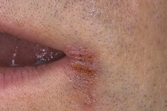 Мазь для лечения перианального дерматита
