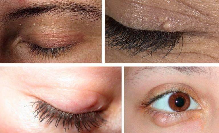 белые точки возле глаз