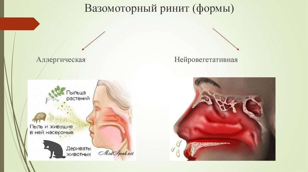 Вазомоторный ринит: симптомы и лечение, что это?