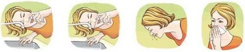 как убрать сопли из носоглотки у ребенка