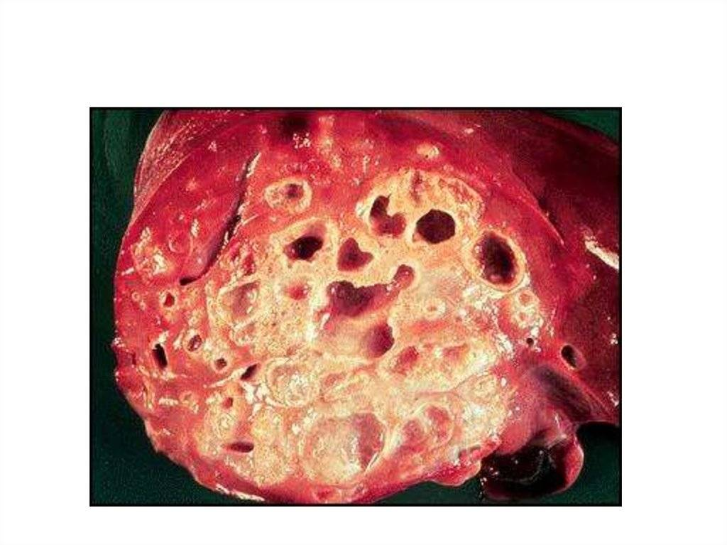 Эхинококк: причины, симптомы и лечение у человека