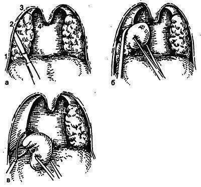 Увеличенные миндалины: удалять или нет, показания, методы, восстановление после удаления