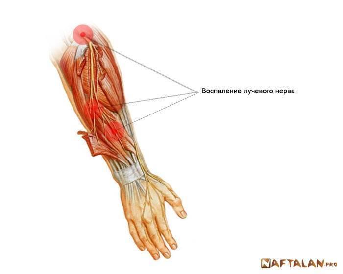 Неврит лучевого нерва. симптомы, лечение — симптомы