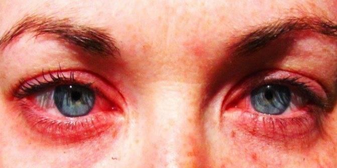 Почему после сауны болят глаза