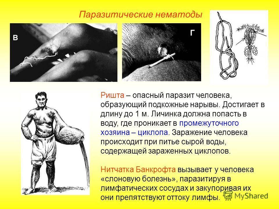 Червь ришта: жизненный цикл, симптомы и лечение. ришта червь: симптомы и лечение ришта заражение
