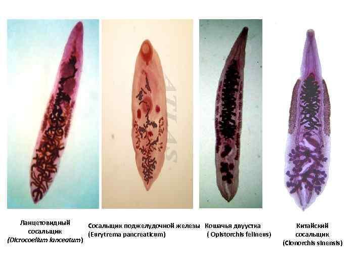 Симптомы и лечение паразитарного клонорхоза