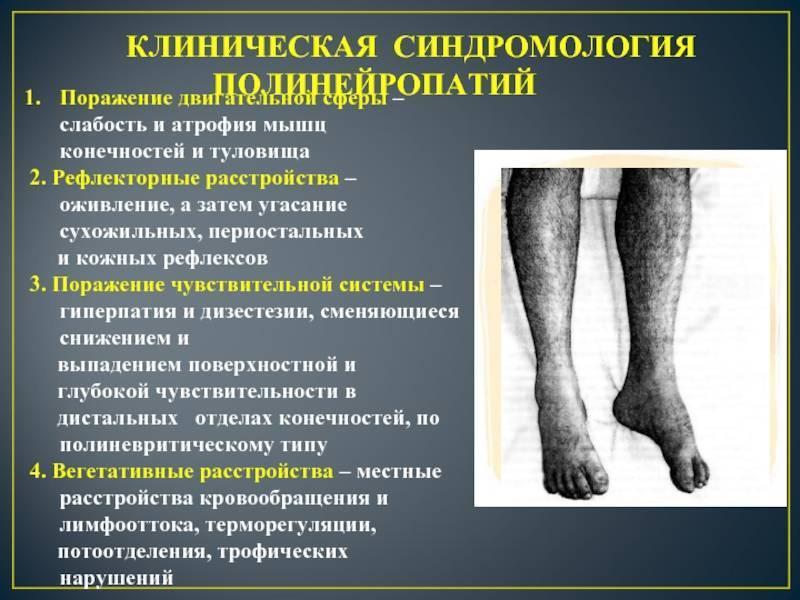 как лечить полинейропатию нижних конечностей