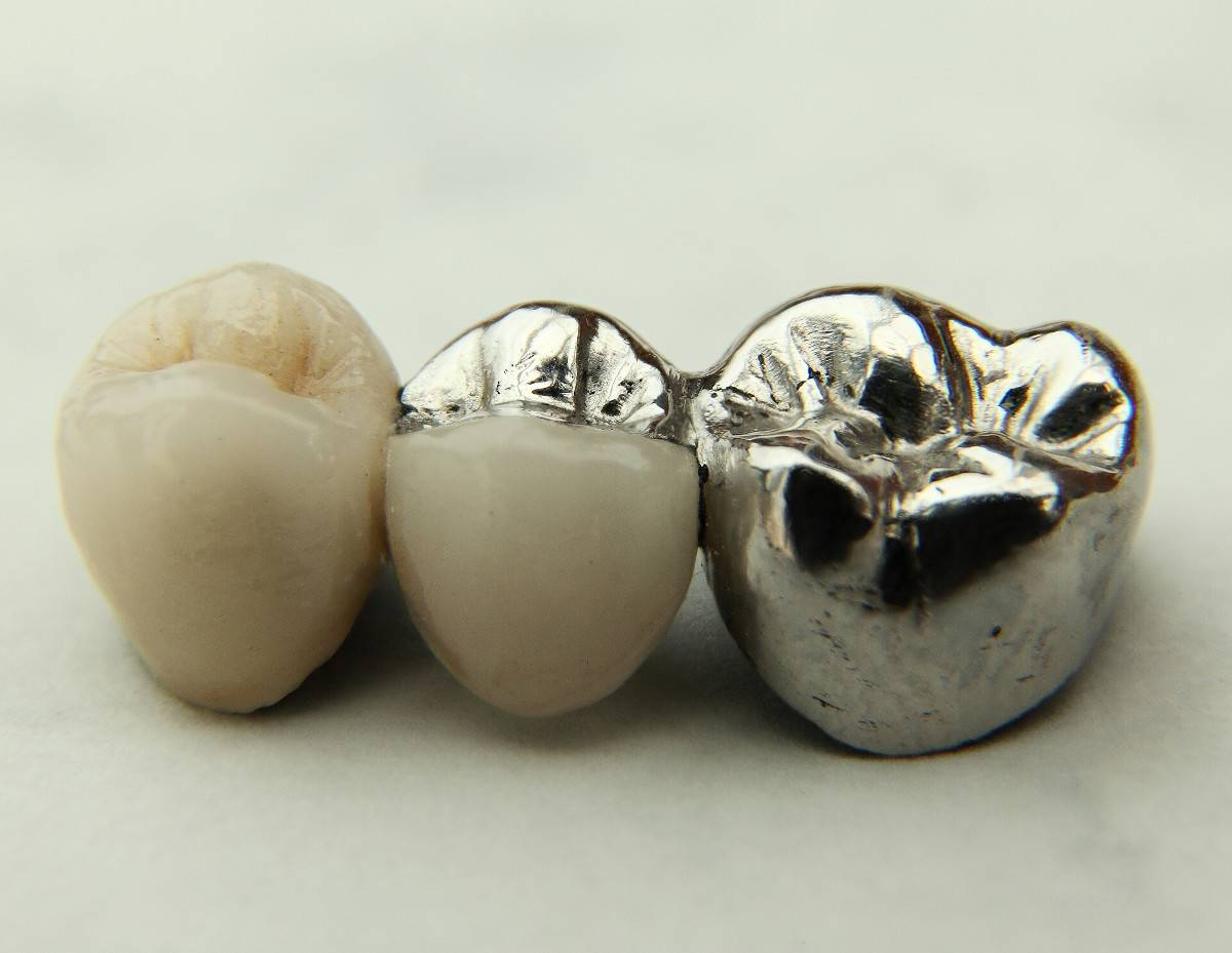 Мостовидный адгезивный протез: зубное протезирование без обточки, цены, фото