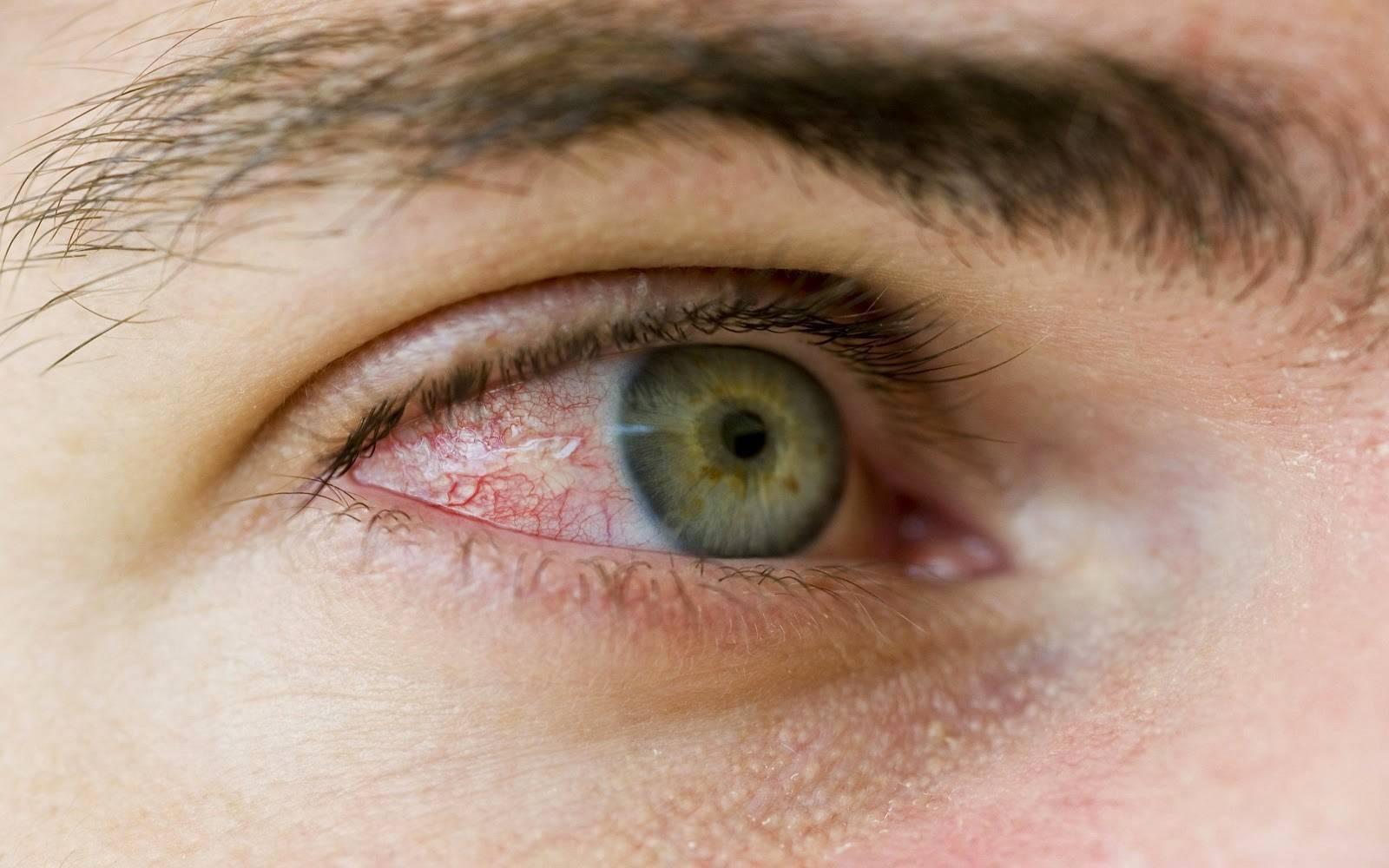 как убрать красноту глаз быстро в домашних условиях