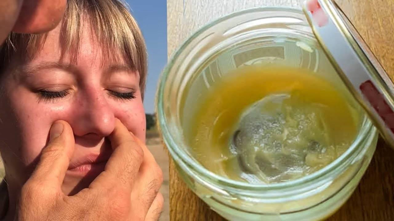 Симптомы и лечение гнойного гайморита